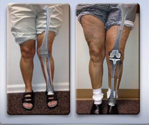 Properly Aligned Knee replacement