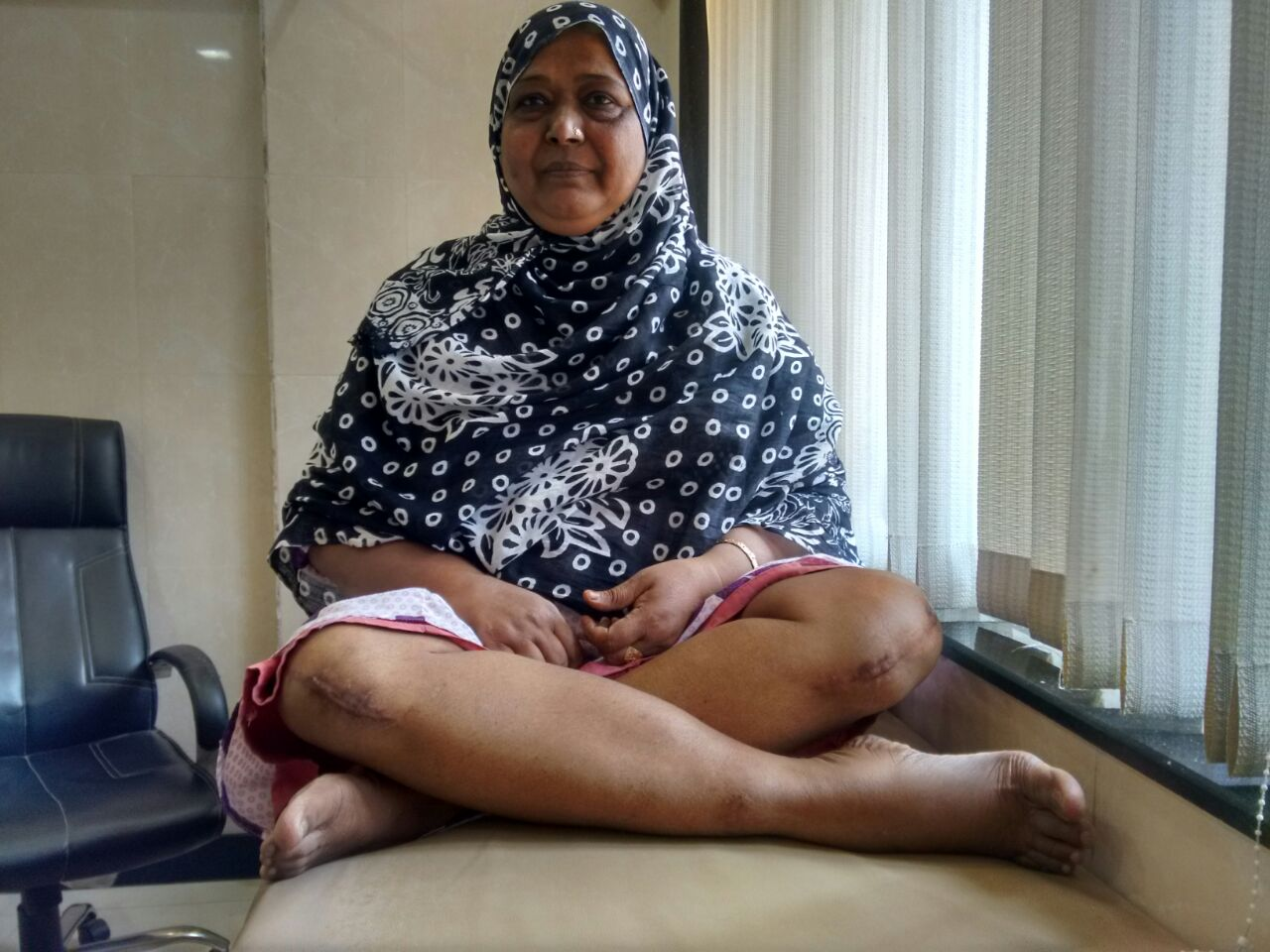 A patient sitting cross legged after both knee replacement.|Hip & Knee Replacement Centre|Kandivali West,Mumbai