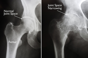 (Left) In this x-ray of a normal hip, the space between the ball and socket indicates healthy cartilage. (Right) This x-ray of an arthritic hip shows severe loss of joint space. Source: http://orthoinfo.aaos.org/topic.cfm?topic=A00377