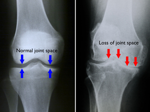 Normal versus Arthritis Knee.  this x-ray of a normal knee, The space between the bones indicates healthy cartilage (blue arrows). In arthritic knee there is severe loss of joint space (red arrows). (Image Source http://orthoinfo.aaos.org/topic.cfm?topic=a00212)