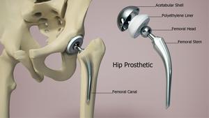 Hip Prosthetic
